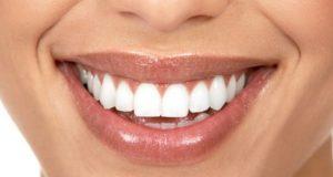 6 Prosedur Gigi Kosmetik Umum Dijelaskan